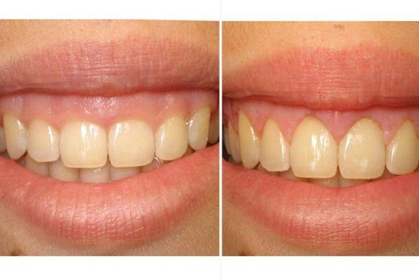 gum graft recovery instructions