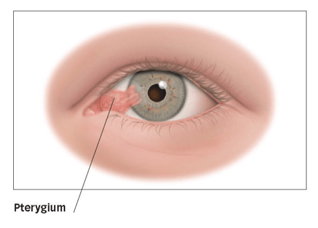 temporal artery biopsy discharge instructions